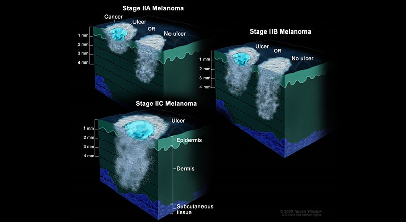 The 5 Stages of Nail Melanoma 4