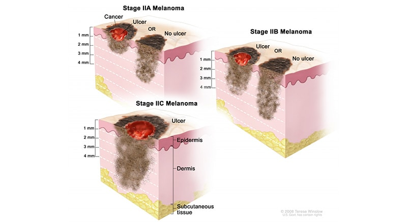 The 5 Stages of Nail Melanoma 3