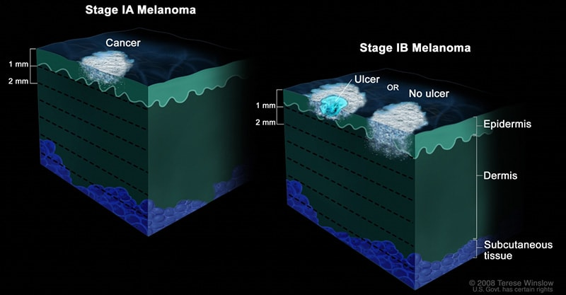 The 5 Stages of Nail Melanoma 2