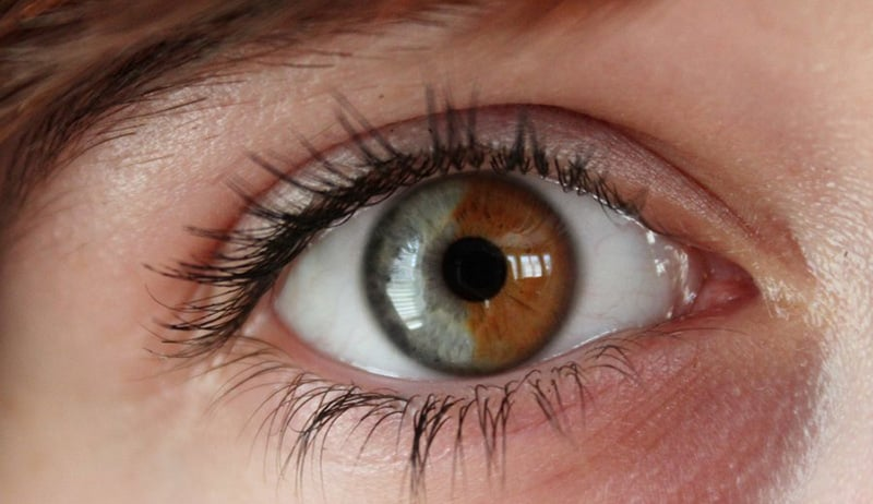 Central Heterochromia – Reasons, Possibility and its Types 11