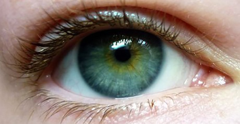 Central Heterochromia – Reasons, Possibility and its Types 6