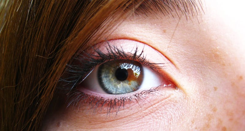 Central Heterochromia – Reasons, Possibility and its Types 10
