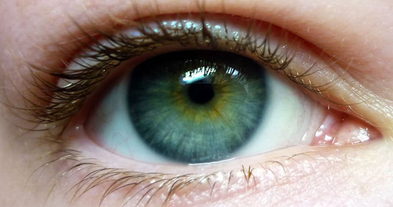 Central Heterochromia – Reasons, Possibility and its Types 4
