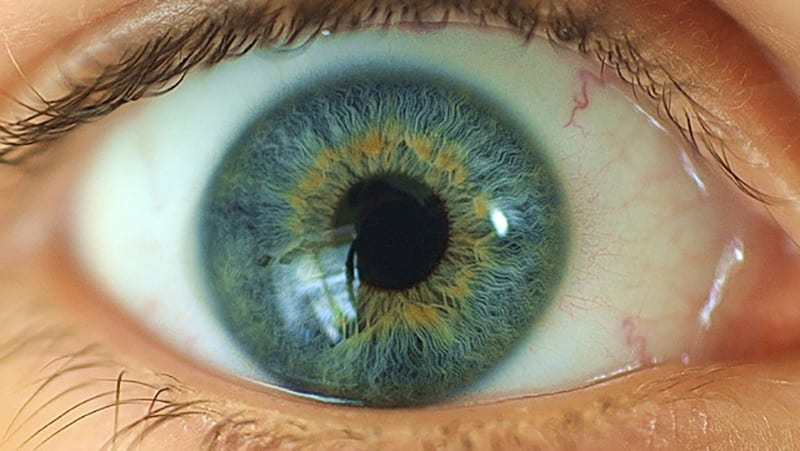 Central Heterochromia – Reasons, Possibility and its Types 8