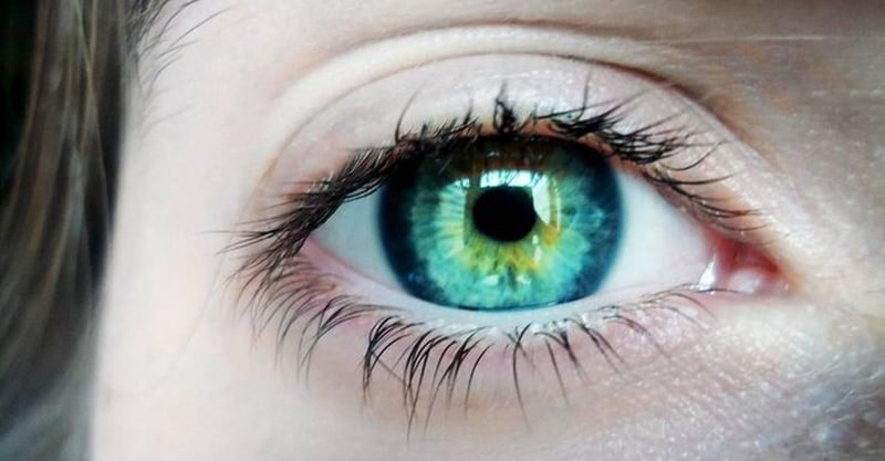 Central Heterochromia – Reasons, Possibility and its Types 9