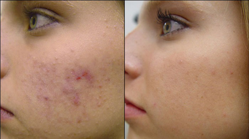 Can You Use Castor Oil on Your Face for Acne? 3