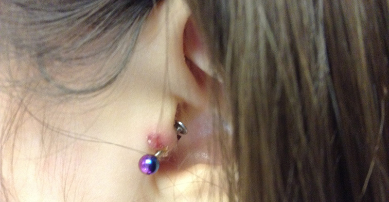 5 Facts About Tragus Piercing Pain that Everyone Must Know 3