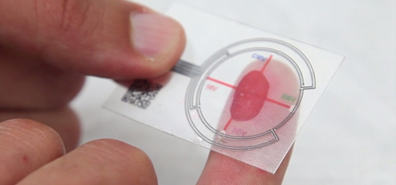 Is an Antibiotic What You Need? Quick Blood Test Might Tell 2