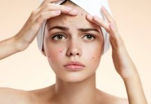How to get rid of blackheads on face
