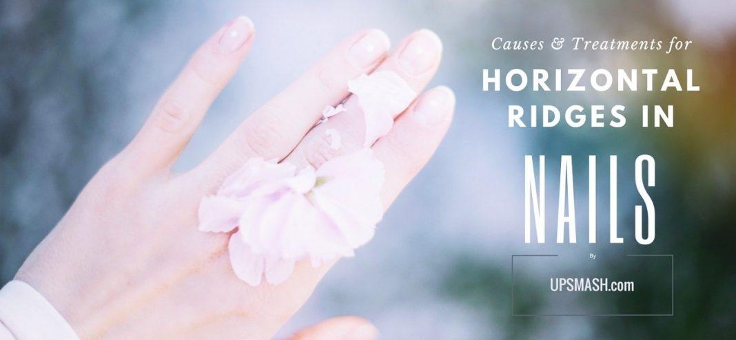 Horizontal Ridges in Nails – aka Beau Lines: Causes and Treatment