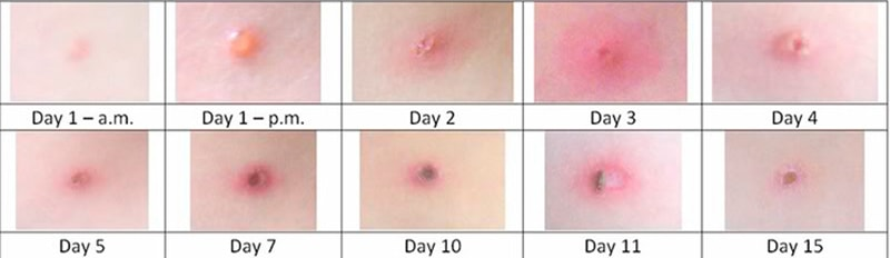 Chickenpox Symptoms in Adults and Teenagers 1