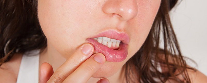 Easy Tips to Get Rid of Awful Cold Sores 1