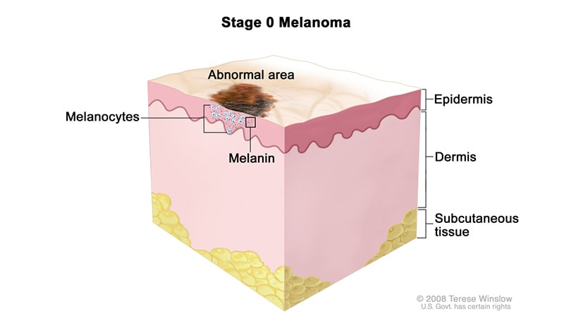 The 5 Stages of Nail Melanoma 1